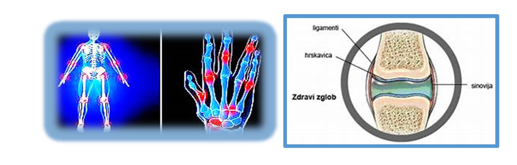 Reumatoidni-artritis-2