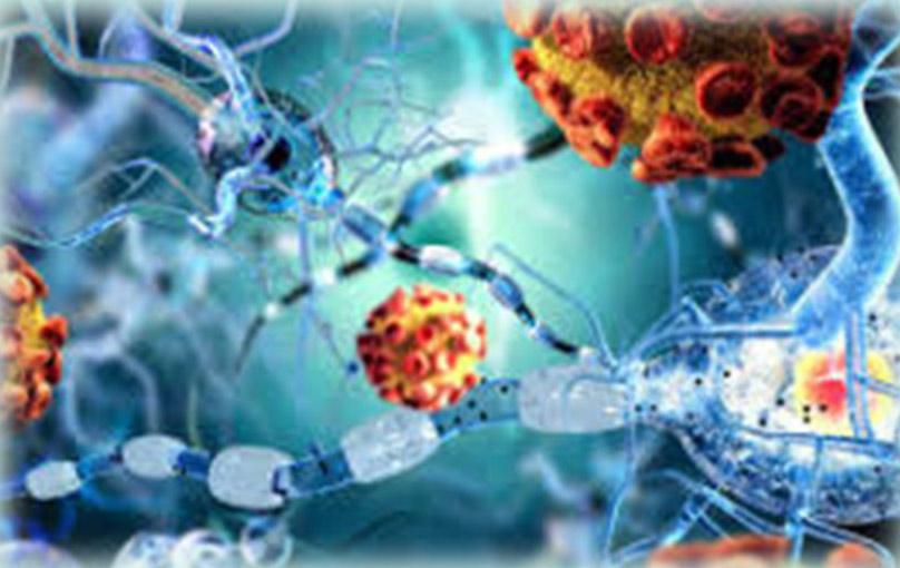 Autoimune-bolesti