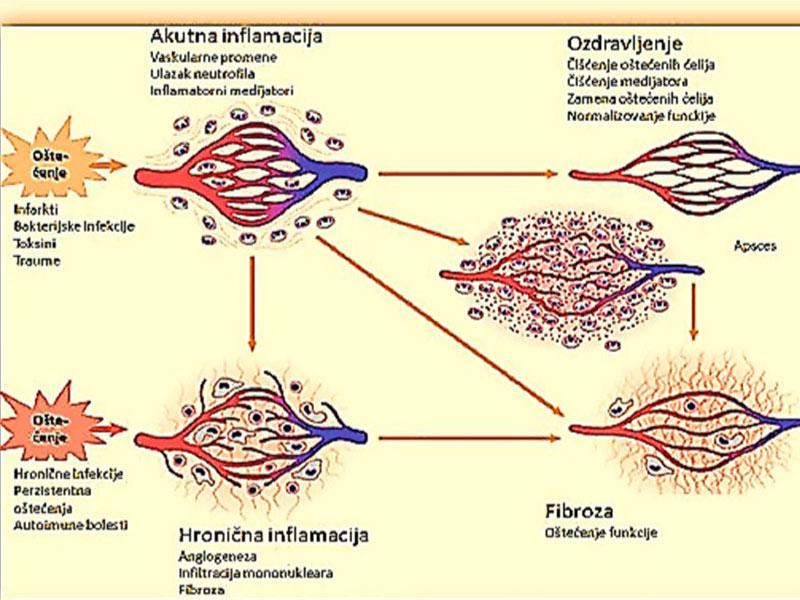 inflamacija