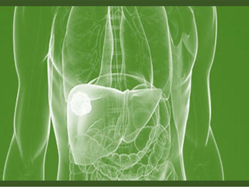 Karcinom jetre