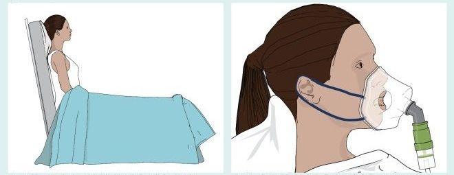 Priprema i postupak uzimanja uzorka donjih disajnih organa – iskašljaj (sputum)