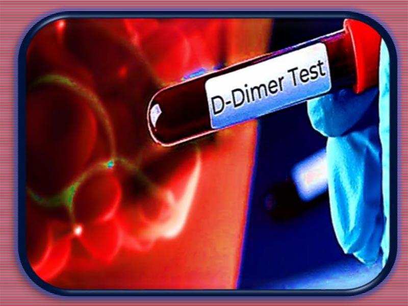 Klinički značaj određivanja D-dimera